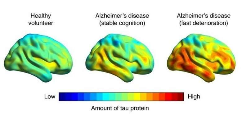 Brain imaging can predict Alzheimer's-related memory loss