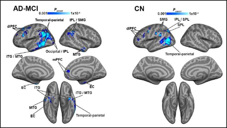Brain regions with impaired blood flow have higher tau levels