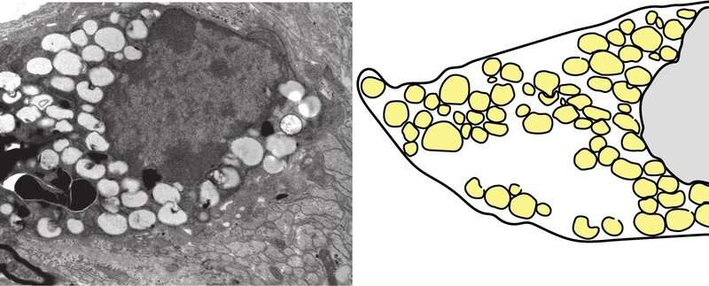 Cholesterol recycling supports myelin repair
