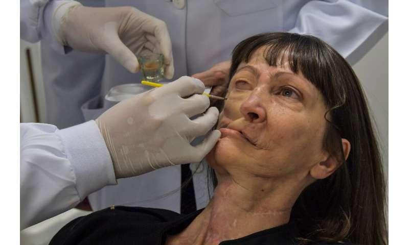 Denise Vicentin's journey to facial prosthetics began three decades ago when she developed a facial tumor