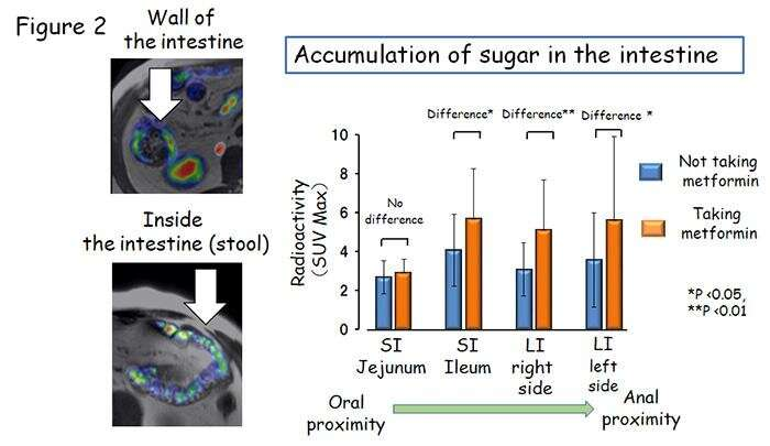 'Excretion of sugar into stool'? New action of anti-diabetic drug discovered