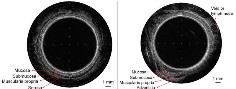 Finger-size ultrasound capsule endoscopy for effective high-resolution imaging