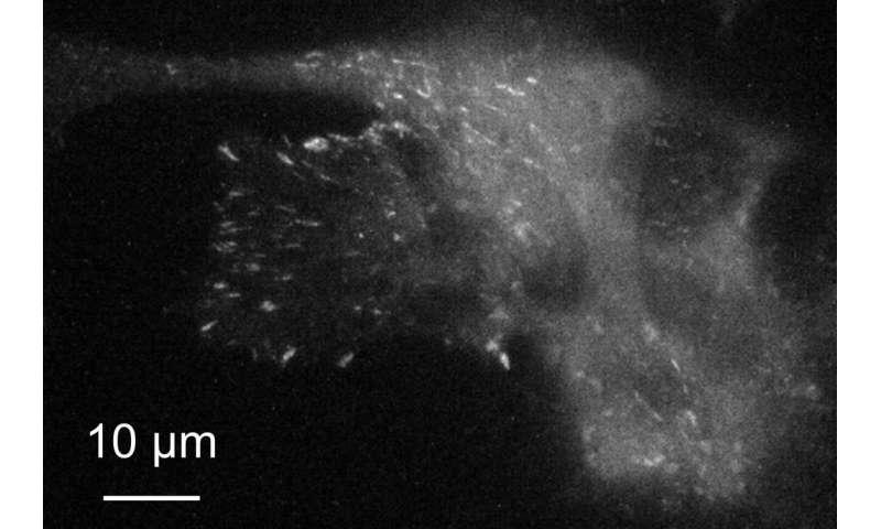 Higher-resolution imaging of living, moving cells using plasmonic metasurfaces