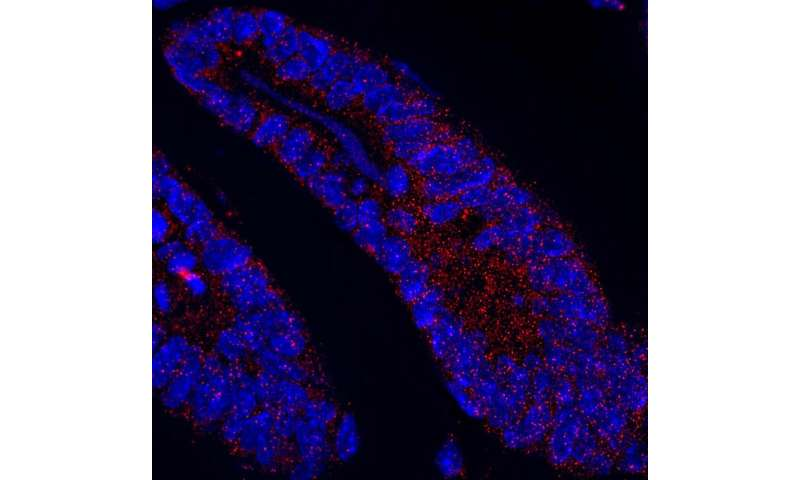 Loss of protein disturbs intestinal homeostasis and can drive cancer
