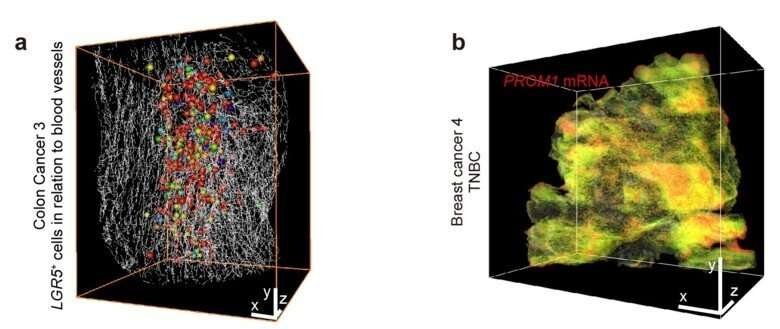 New 3-D imaging method for tumour samples to be used for studying COVID-19
