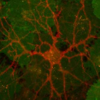 New dopamine sensors could help unlock the mysteries of brain chemistry