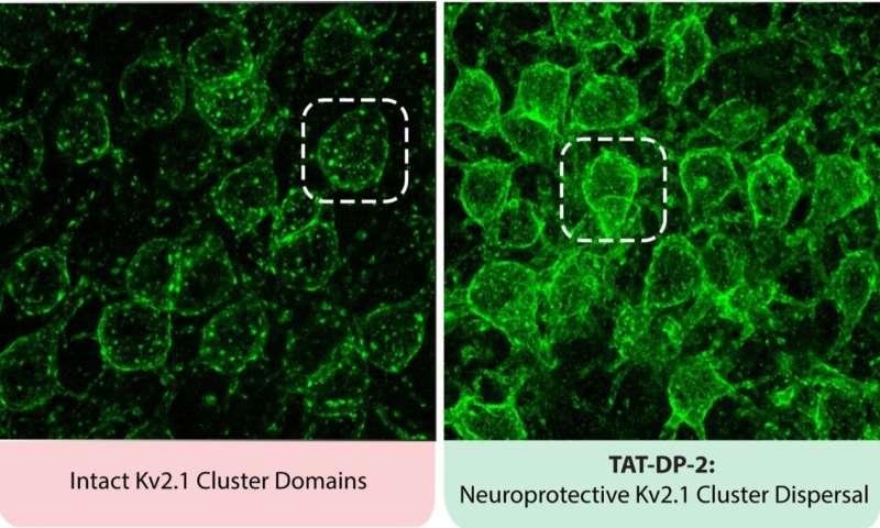 New drug reduces stroke damage in mice