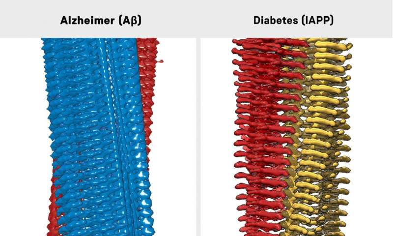 New indication of a link between Alzheimer's and diabetes
