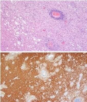 Not all multiple-sclerosis-like diseases are alike