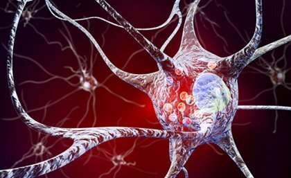 Parkinson's disease linked to gene targeted by blue-green algae toxin