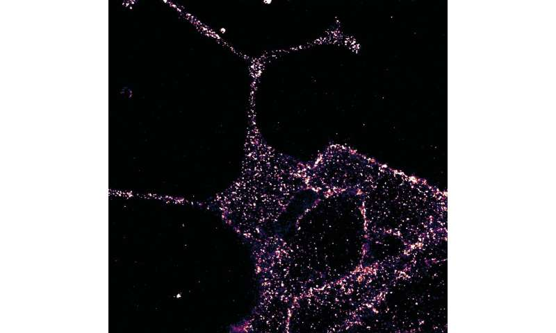Researchers obtain 'high-definition' view of diabetes-related proteins