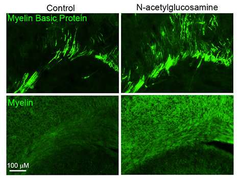 Simple sugar possible therapy for repairing myelin in multiple sclerosis