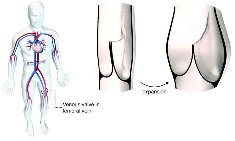 Size-adjustable prosthetic heart valve accommodates heart growth in sheep