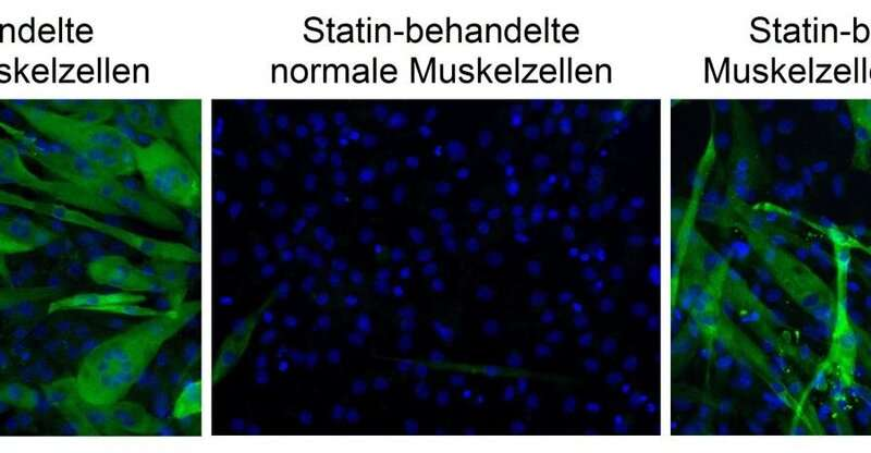 Statins: Researchers uncover how cholesterol-lowering drugs cause muscle pain
