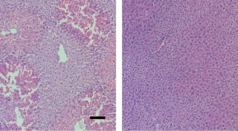 Surprising players in acute liver failure point to potential treatment