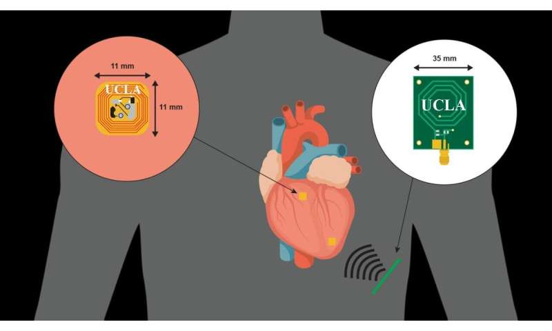 Texas Heart Institute and UCLA reveal innovative pacing system in Scientific Reports