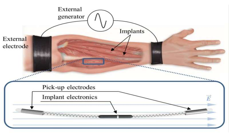 The human body as an electrical conductor, a new method of ...