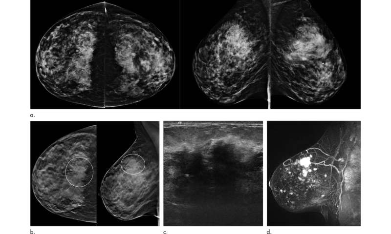 Tomosynthesis outperforms digital mammography in five-year study