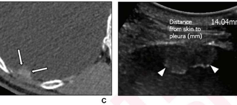 بیوپسی سوزن از راه پوست با سونوگرافی عالی برای تشخیص ضایعات کوچک پلور