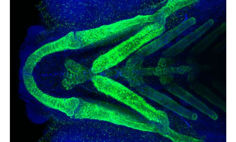 Virginia Tech researchers link rare medical condition to its cause