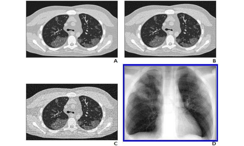 Virtual imaging trials optimize CT, radiography for coronavirus disease (COVID-19)