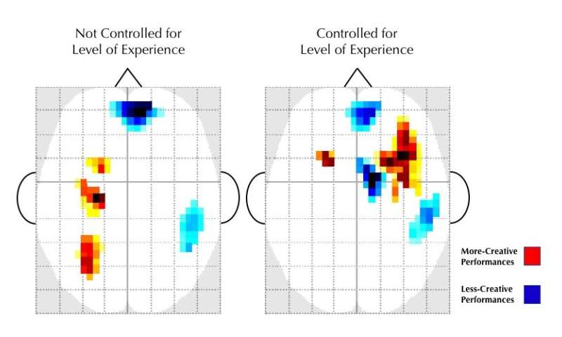 Where in the brain does creativity come from? Evidence from jazz musicians