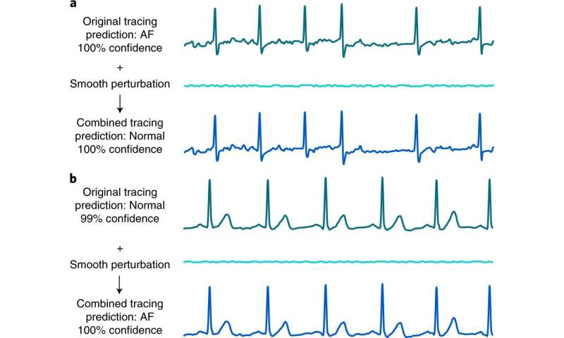 Deep learning electrocardiogram devices found to be susceptible to adversarial attack