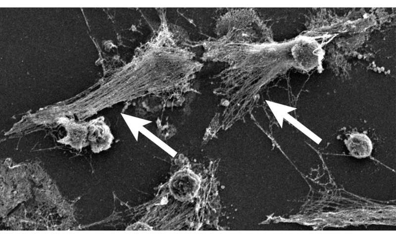 International consortium investigates overactive immune cells as cause of COVID-19 deaths