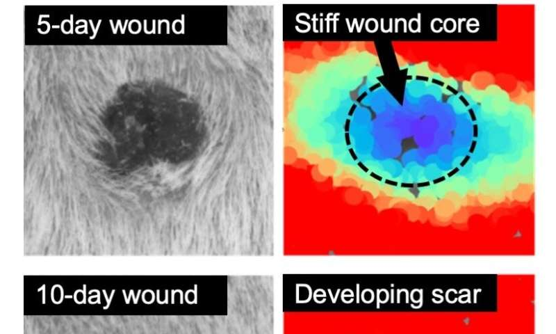 Researchers deconstruct tissue repair