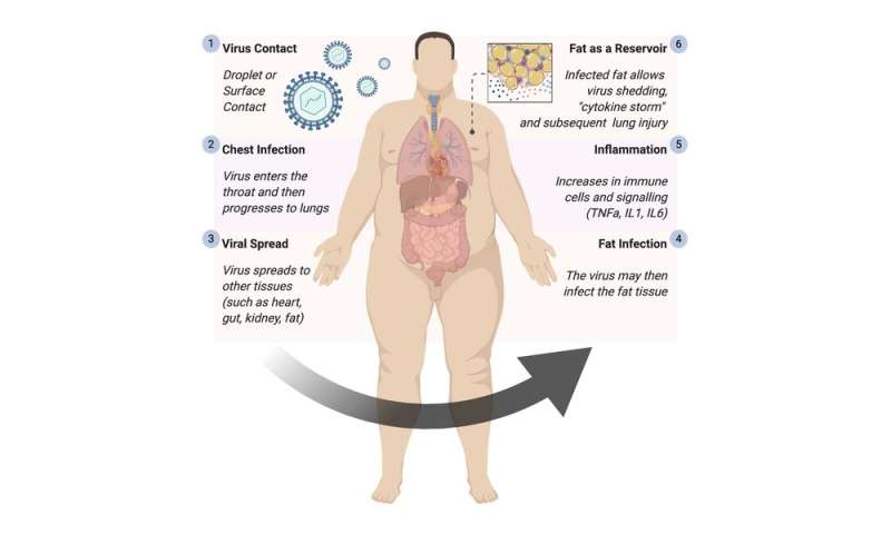 Coronavirus linked to greater risk of life-threatening infection in people with obesity