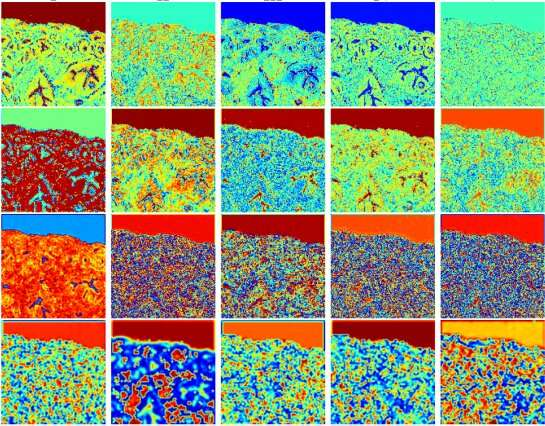 Deep learning accurately stains digital biopsy slides