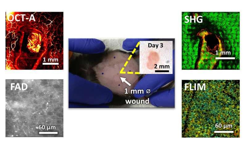 Researchers develop microscopy technique for noninvasive evaluation of wound healing