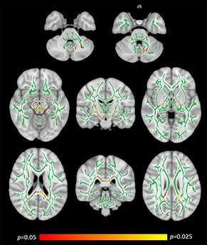 Researchers confirm coeliac disease can damage the brain