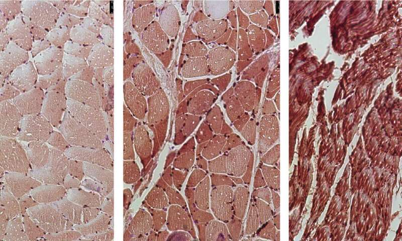 Researchers identify therapeutic targets to prevent cancer-associated muscle loss