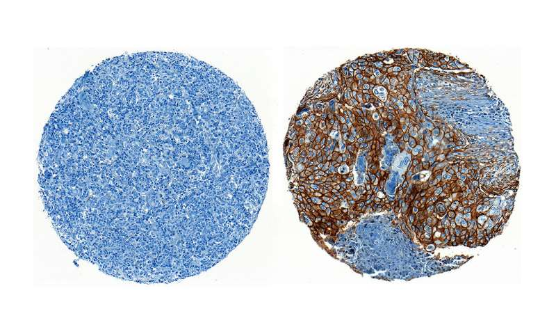 Discovery about how cancer cells evade immune defenses inspires new treatment approach