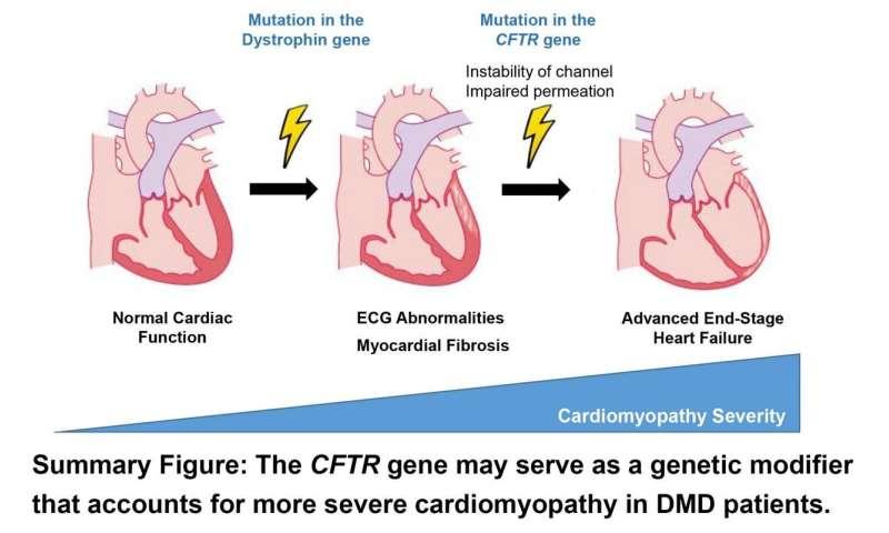 جهش ژنتیکی می تواند عملکرد قلب را در بیماران دیستروفی عضلانی دوشن بدتر کند