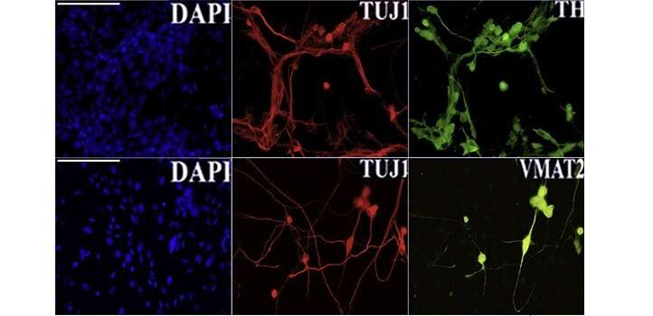 Jumping genes help make neurons in a dish