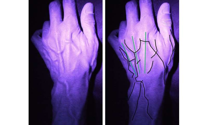 New app launched for public to help pioneering hand identification research