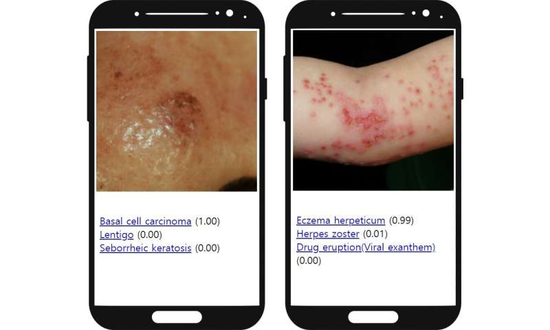 New artificial intelligence system can empower medical professionals in diagnosing skin diseases