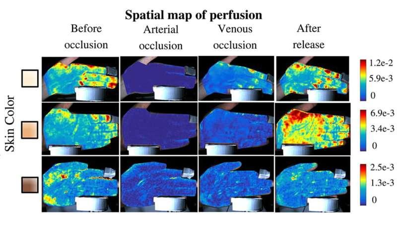 PulseCam peeks below skin to map blood flow