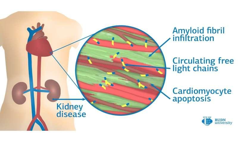 RUDN University physicians learned to diagnose AL-amyloid cardiopathy, a deadly heart disease
