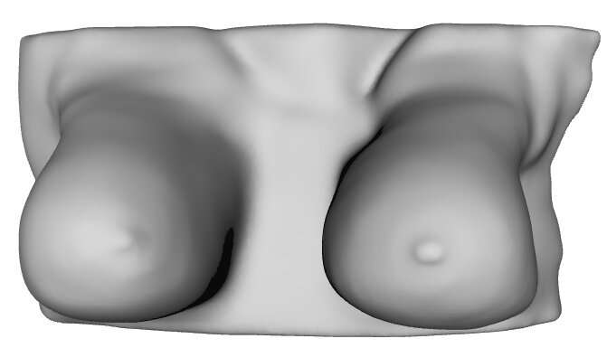 Using Infrared Cameras to Detect Early Stage Breast Cancer