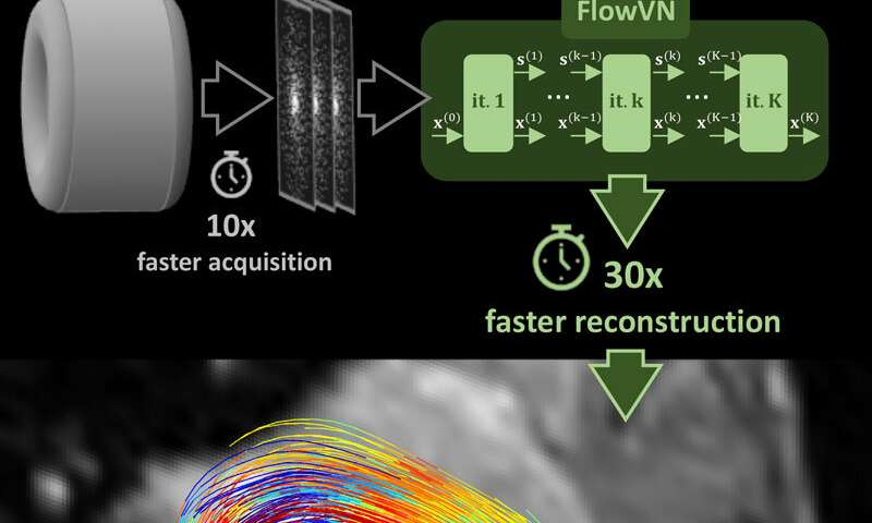 Artificial intelligence accelerates blood flow MRI