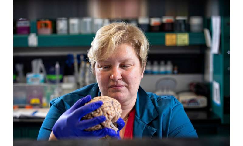 University of Ky study leads to potential for new treatment approach to Alzheimer's