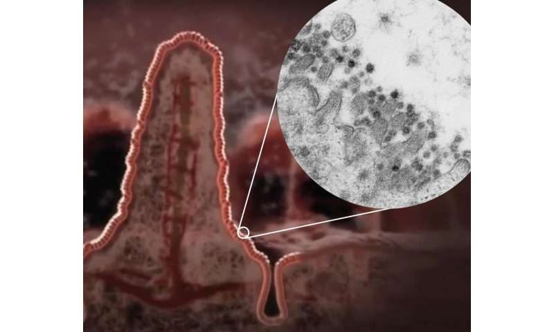 Coronavirus SARS-CoV-2 infects cells of the intestine