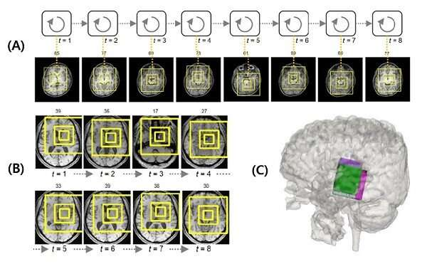 Deep learning helps explore the structural and strategic bases of autism?