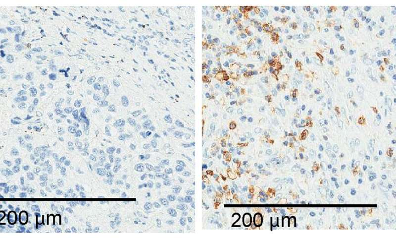 Researchers identify RNA molecule that helps lung cancer cells evade immune system