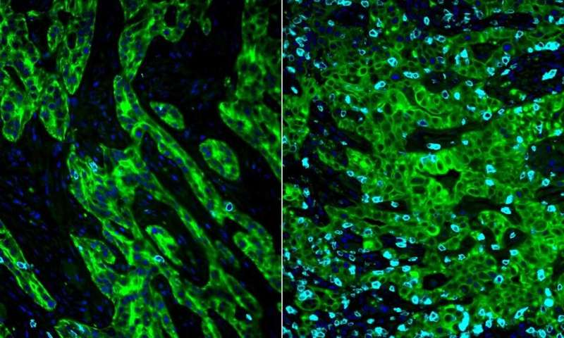 Pancreatic cancer cells hijack basic cell mechanism to evade immunotherapy