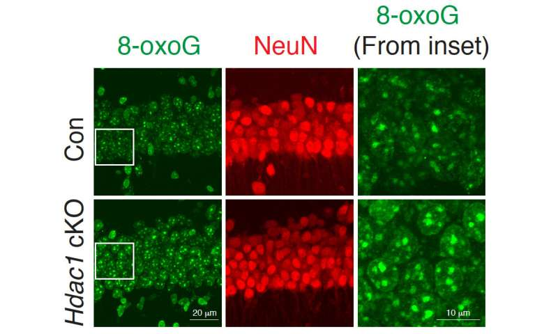 Study finds that aging neurons accumulate DNA damage