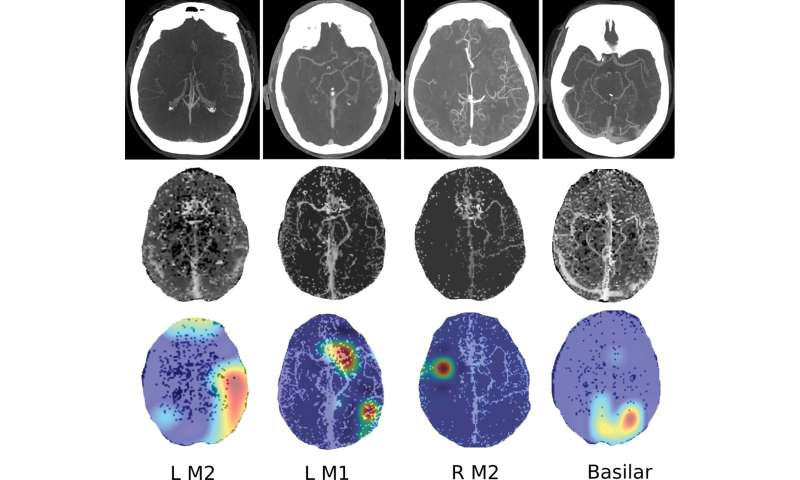 Deep learning model provides rapid detection of stroke-causing blockages